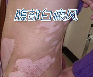 女性白癜风患者晒伤后如何护理