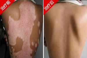 背部长白斑治疗要注意什么