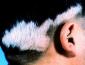 白癜风对患者主要危害有哪些